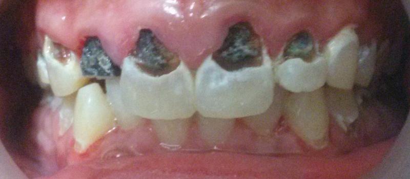 Zirconia Tilite Crowns E Max Crown Glass Ceramic Crown Smile