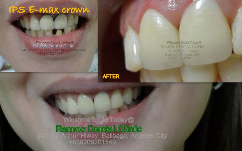 Zirconia Tilite Crowns E Max Crown Glass Ceramic Crown Smile
