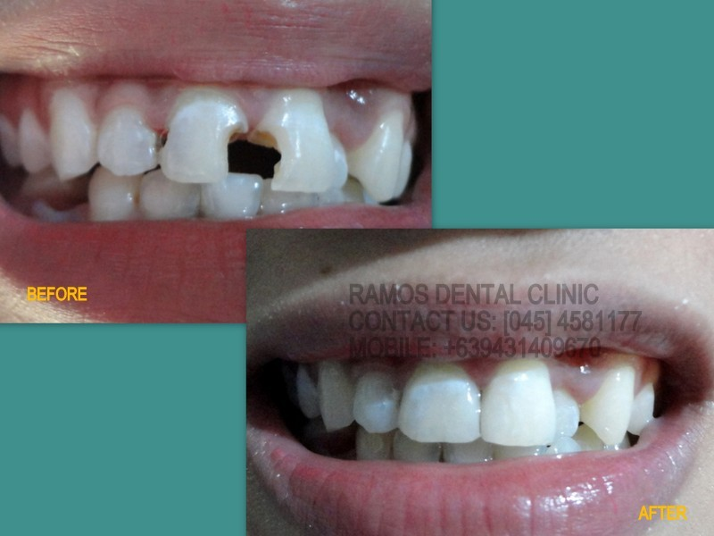 ZIRCONIA/TILITE CROWNS /e.max crown/ glass ceramic crown/ smile ...